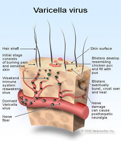 varicella_virus.jpg